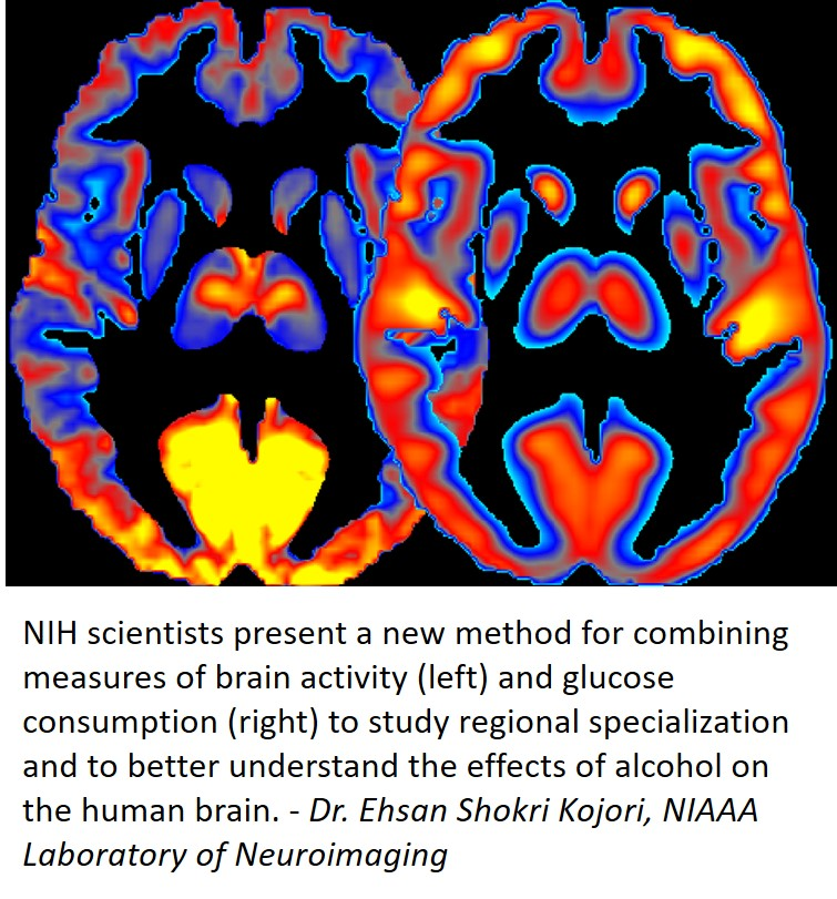 Brain imaging used by NIH scientists to improve our understanding of how alcohol affects the brain