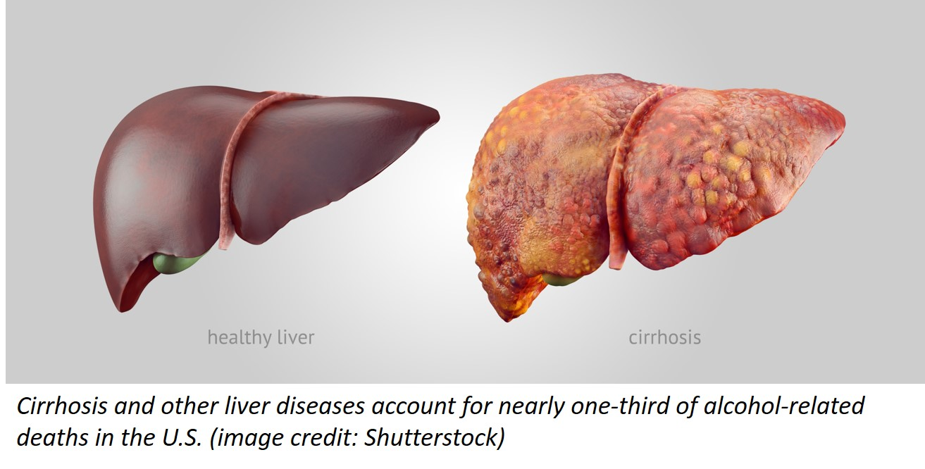 Two illustrations of the human liver. left: a healthy liver; right: a liver showing signs of cirrhosis
