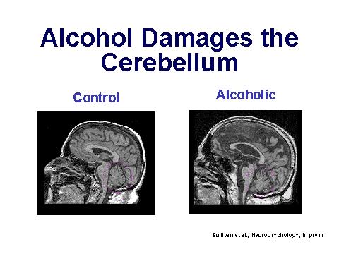 alcohol slecht voor hersenen
