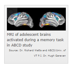 MRI of adolescent brains activated during a memory task in ABCD study. Source Dr. Richard Watts