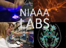 NIAAA Labs. 4 images made of 2 images of the brain and 2 of staff at work.