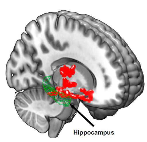 caption: Brain imaging after one night of sleep deprivation revealed beta-amyloid accumulation in the hippocampus and thalamus, regions affected by Alzheimer's disease; Credit: Proceedings of the National Academy of Sciences