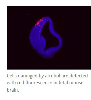 Cells damaged by alcohol are detected with red fluorescence in fetal mouse brain.