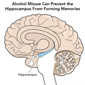 Alcohol misuse can prevent the hippocampus from forming memories, brain image