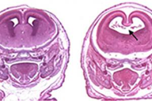Stained sections of fetal mouse brains.  (Left) Control. (Right) Mouse exposed to alcohol and a cannabinoid on the 8th day of pregnancy. Black arrow highlights enlarged cerebral ventricle caused by the loss of the midline septal region. (Dr. Scott Parnell, UNC Chapel Hill)
